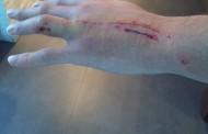 Foto: Así quedó la mano la Krychowiak tras el pisotón de ayer