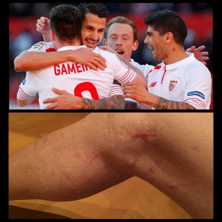 Foto: Vitolo enseña las 'heridas de guerra' tras el partido